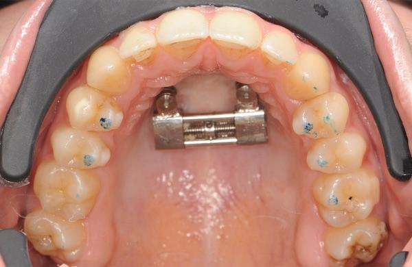 Disjonction maxillaire par ancrage osseux